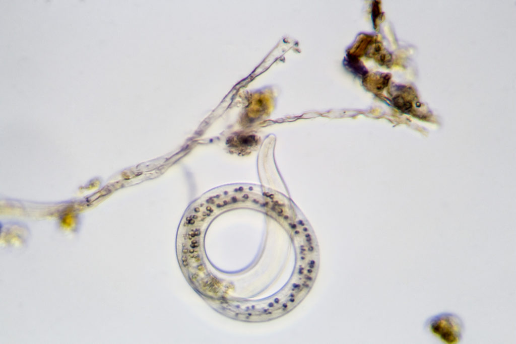A Nematode at approximately 400X